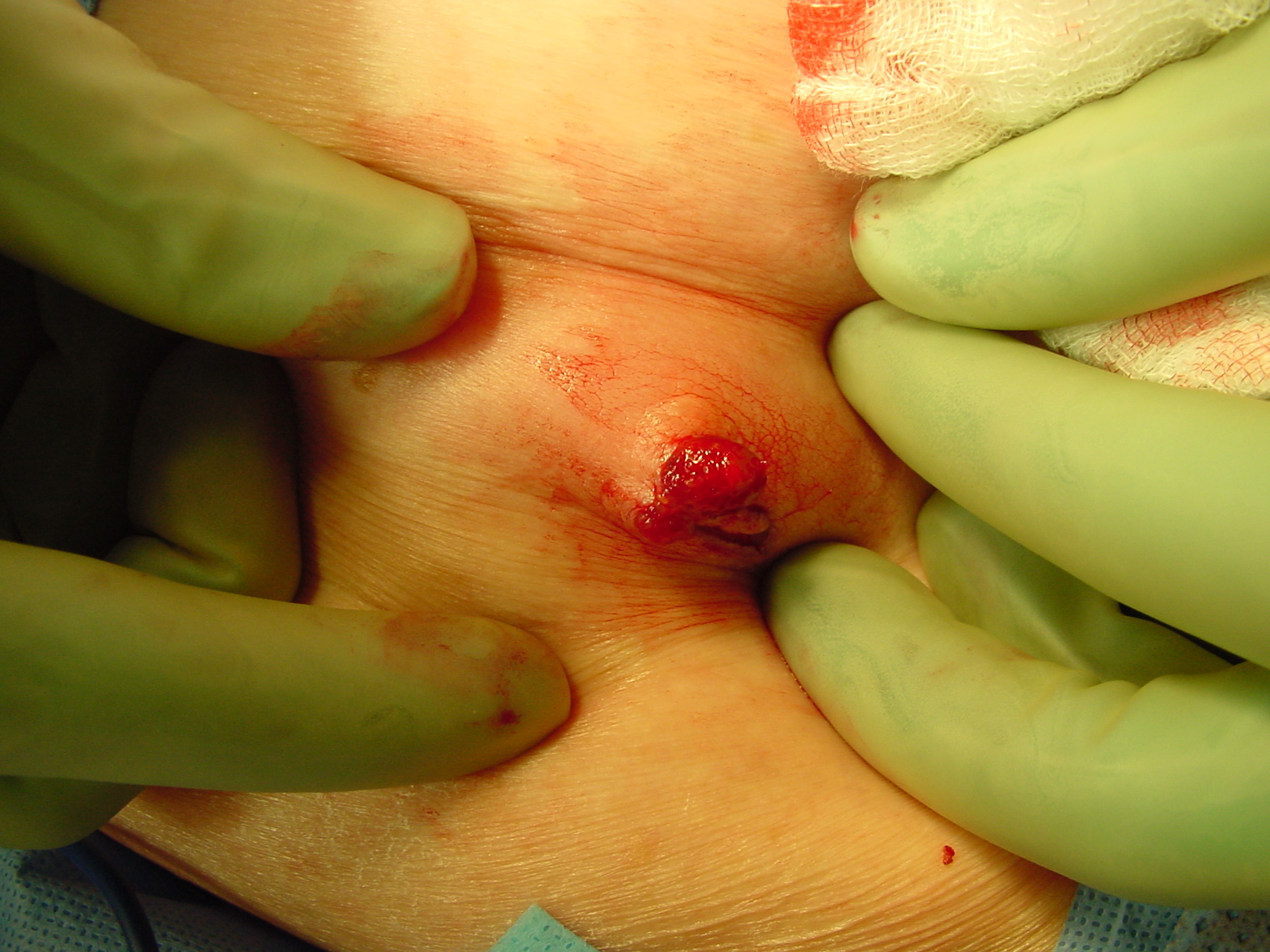 ductal papilloma removal)